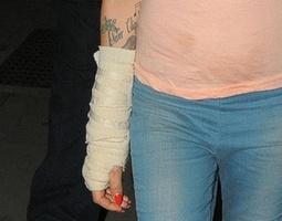 Amy Winehouse é fotografada saindo de club em Londres com o braço enfaixado (12/10/2010)