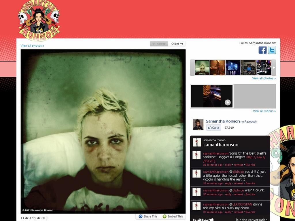 Samantha Ronson, foi atropelada por um carro e colocou uma foto em seu Twitter de seu rosto machucado com a legenda