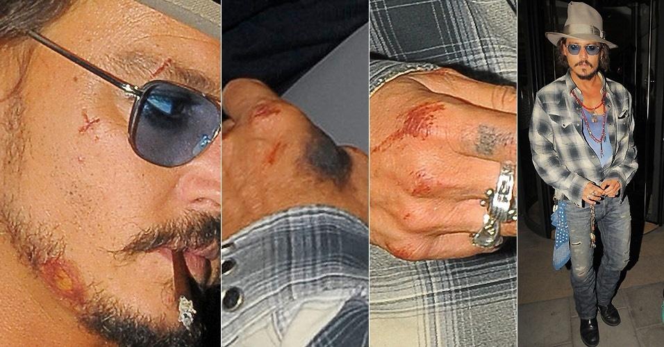 O ator Johnny Depp é fotografado cheio de cortes e hematomas em Londres (15/9/2010)
