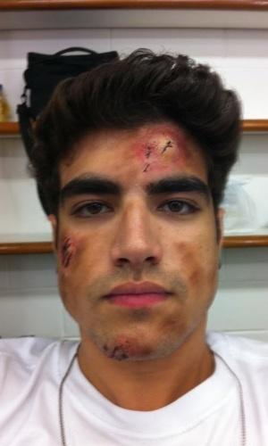Caio Castro mostra foto em que aparece com ferimentos de mentira (3/2/2012)