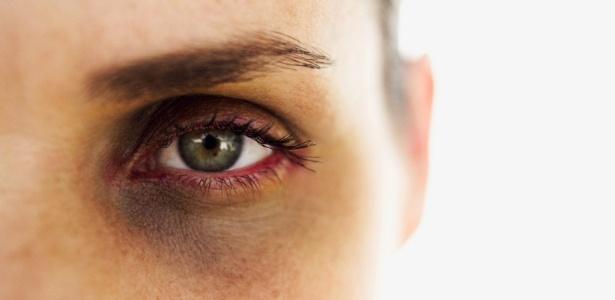 Estima-se que mais de 2 milhões de mulheres são espancadas a cada ano por maridos ou namorados, atuais ou antigos - Getty Images