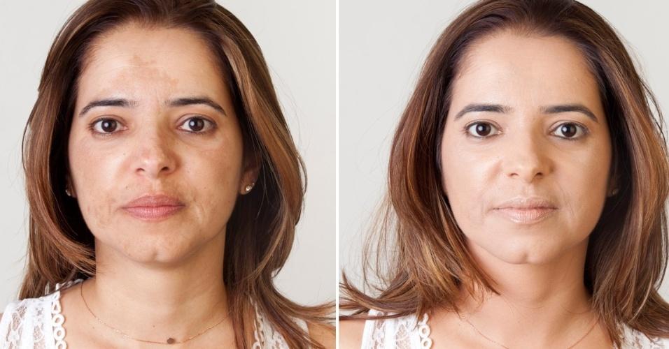 Maquiadores Ensinam A Disfarcar Manchas De Sol De Acne E De