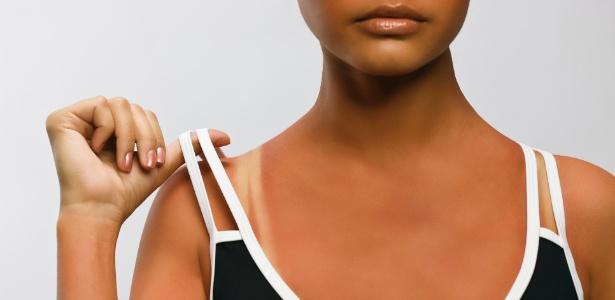 A pele avermelhada pelo sol precisa de hidratação especial com uso de cosméticos próprios para isso - Thinkstock